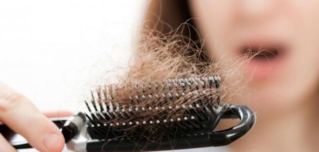 صورة جديد تعريف تساقط الشعر