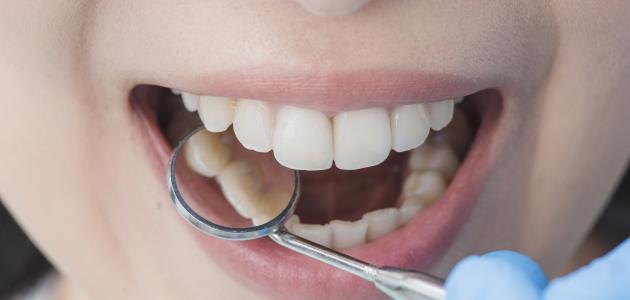 صورة جديد ما علاج تسوس الأسنان