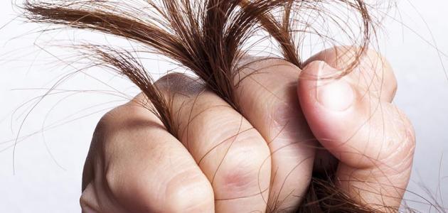 صورة جديد علاج تقصف الشعر وجفافه