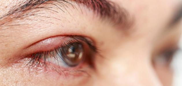 صورة جديد علاج التهاب حول العين
