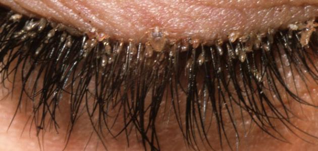 صورة جديد علاج قشرة الرموش