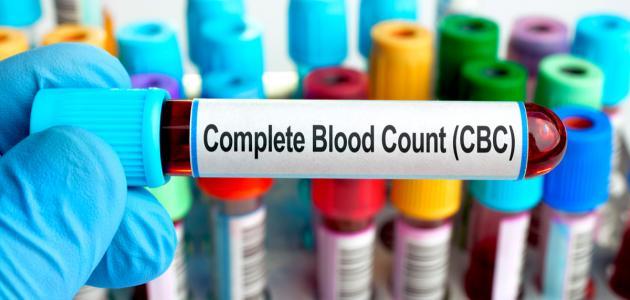 صورة جديد ما هو تحليل الدم cbc