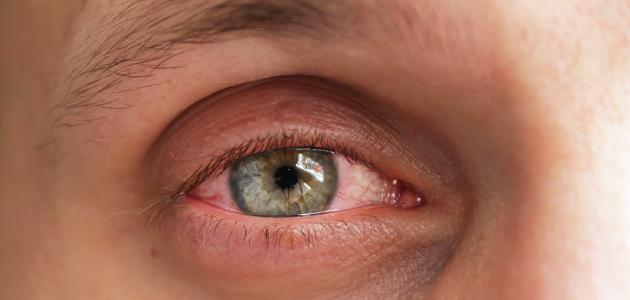 صورة جديد ما هو علاج رمد العين
