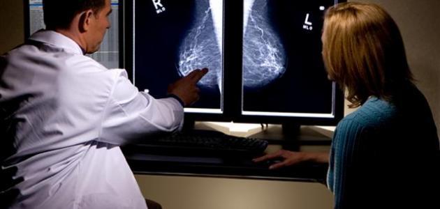 صورة جديد ورم الثدي الحميد