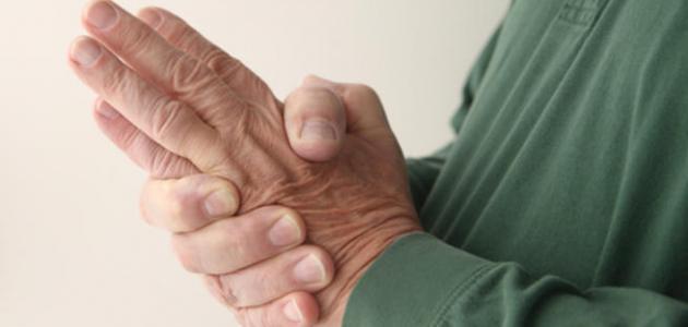 صورة جديد ما سبب تنميل اليدين