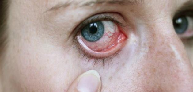 صورة جديد أعراض مرض شبكية العين