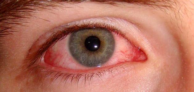 صورة جديد أمراض العين وكيفية الوقاية منها