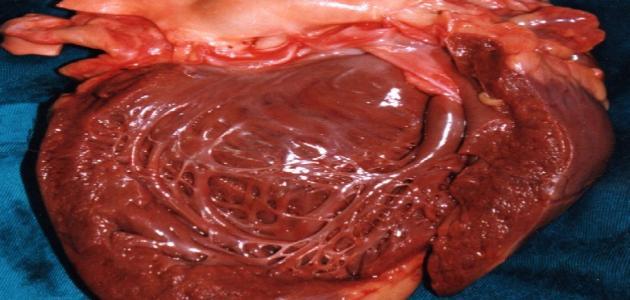 صورة جديد ما هو تضخم القلب