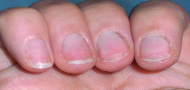 صورة جديد ما سبب تقصف الأظافر