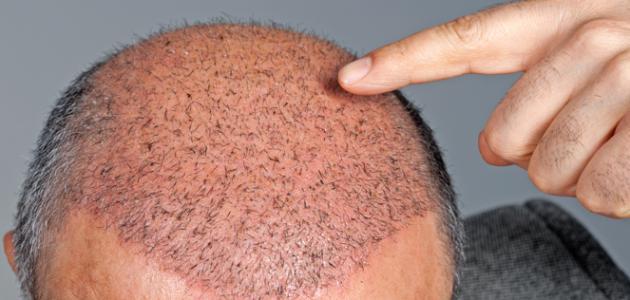 صورة جديد ما هي زراعة الشعر