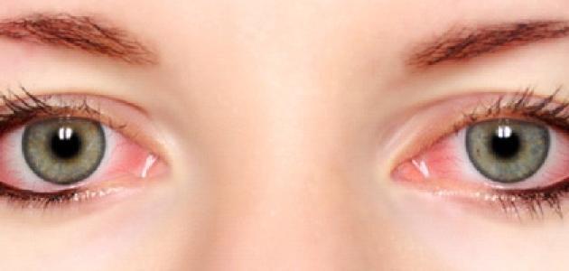 صورة جديد كيفية عمل كمادات للعين