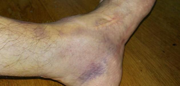 صورة جديد كيفية علاج كدمات القدم