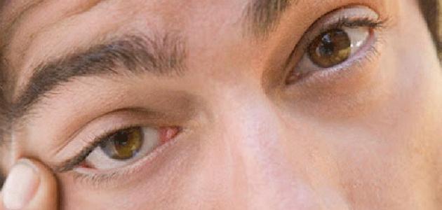 صورة جديد كيف أتخلص من رفة العين