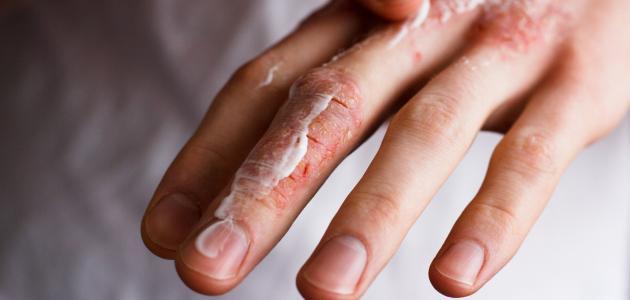 صورة جديد أنواع حساسية الجلد