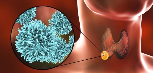 صورة جديد ما هي أمراض الغدة الدرقية