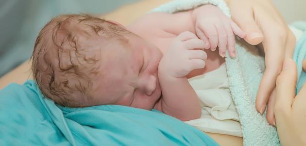صورة جديد أسباب الولادة القيصرية