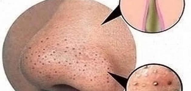 صورة جديد كيف أزيل البقع السوداء من الوجه