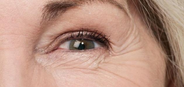صورة جديد كيفية إزالة التجاعيد تحت العين