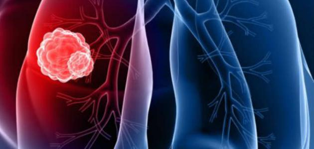 صورة جديد سرطان الرئة ،أعراضه و أسبابه