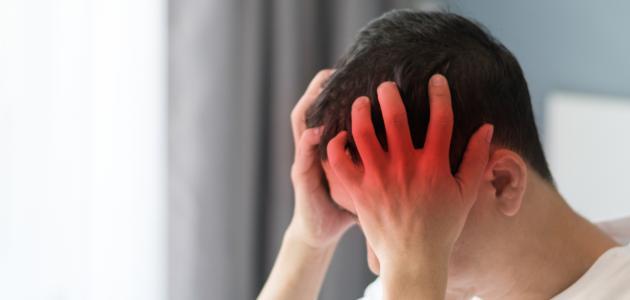 صورة جديد أعراض مرض الشقيقة