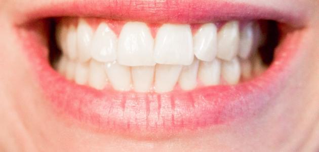 صورة جديد أسباب الجز على الأسنان أثناء النوم