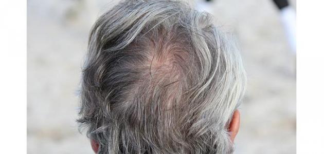 صورة جديد الشعر الأبيض