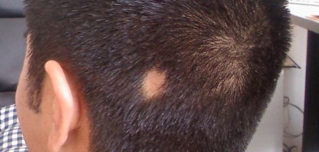 صورة جديد أمراض فروة الرأس