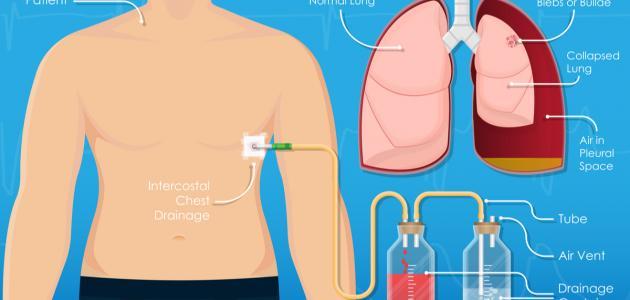 صورة جديد سحب الماء من الرئة