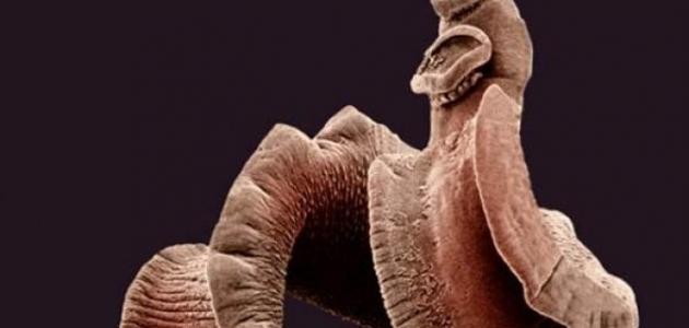 صورة جديد أين تعيش الديدان الطفيلية الشريطية