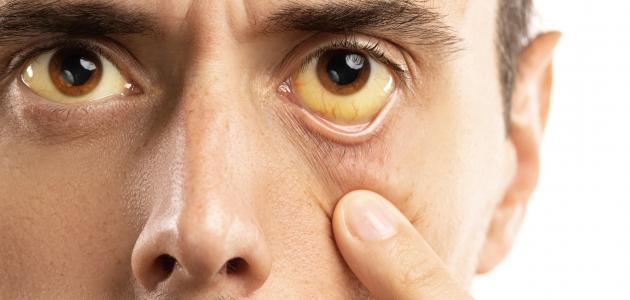 صورة جديد أعراض ارتفاع هيموجلوبين الدم