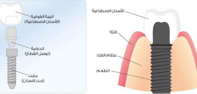 صورة جديد مراحل زراعة الأسنان