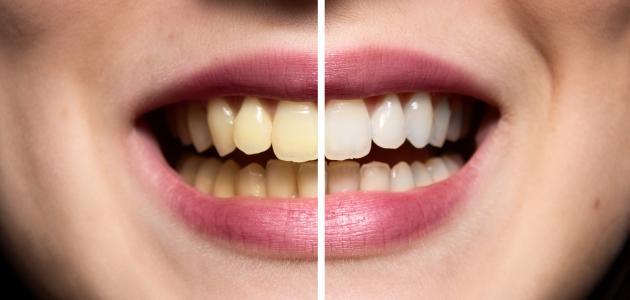 صورة جديد كيفية جعل الأسنان بيضاء