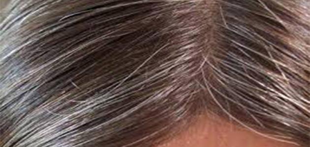 صورة جديد ظهور الشعر الأبيض