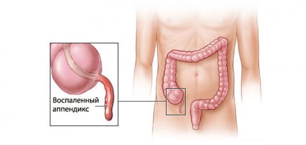 صورة جديد أسباب التهاب الزائدة الدودية