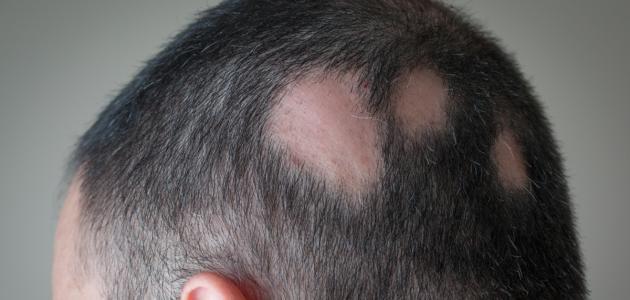 صورة جديد أعراض ثعلبة الشعر