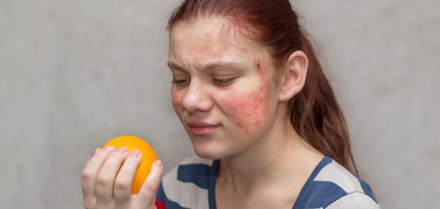 صورة جديد حساسية الجلد من الأكل