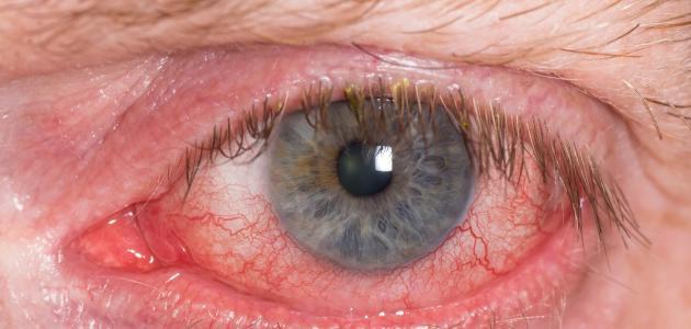 صورة جديد المياه الزرقاء في العين