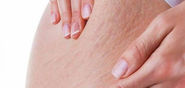 صورة جديد علامات تمدد الجلد الحمراء