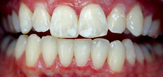 صورة جديد البقع البيضاء في الأسنان