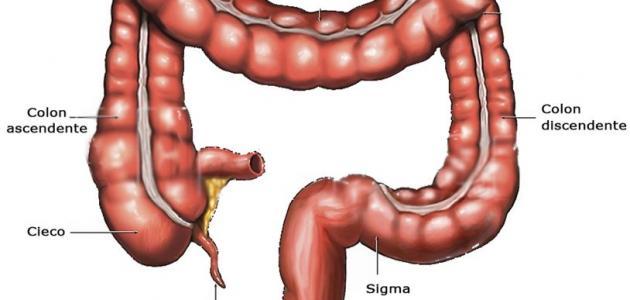 صورة جديد كيفية تشخيص الزائدة الدودية