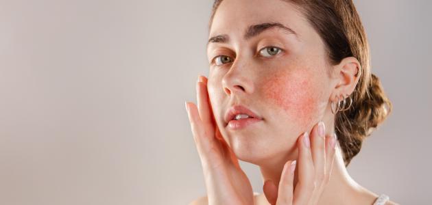 صورة جديد كيف أتخلص من حساسية الوجه