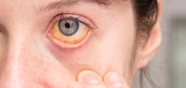 صورة جديد أعراض فيروس سي وعلاجه