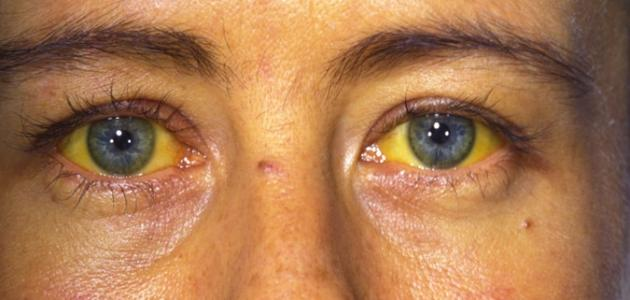 صورة جديد أعراض التهاب الكبد الوبائي ب
