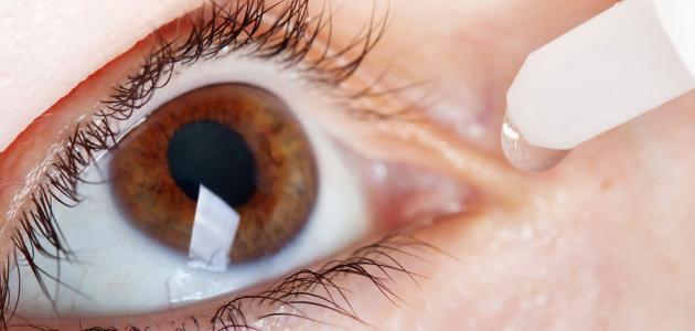 صورة جديد كيف أتخلص من حساسية العين