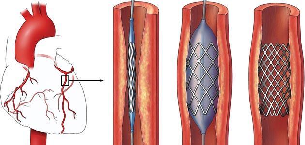 صورة جديد كيف تتم عملية قسطرة القلب