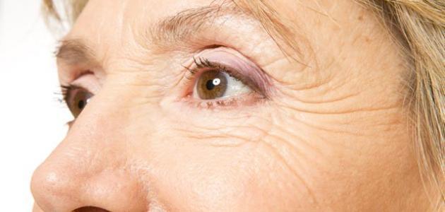 صورة جديد أسباب ظهور خطوط تحت العين