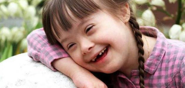 صورة جديد مفهوم الإعاقة الذهنية