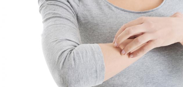 صورة جديد علاج حساسية الجلد