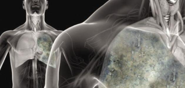 صورة جديد ما هي أعراض المياه على الرئة