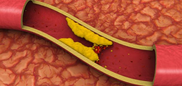 صورة جديد ما هو ارتفاع كوليسترول الدم ؟